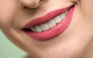 Woman Smiling 1080x675 1 Causes of Tooth Discoloration – Ways Teeth Whitening Can Restore the Dazzle to Your Smile