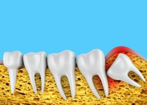 A row of molars and wisdom tooth 943x675 1 8 Signs You Need To Get Your Wisdom Tooth Removed