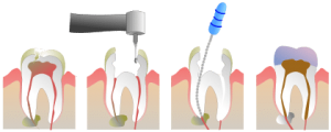 root canal 7 Warning Signs You Need a Root Canal